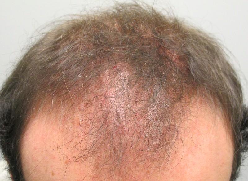 Scarring Cicatricial Alopecia Bernstein Medical