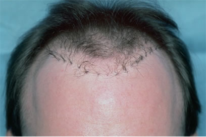 Bad Hair Transplant - Row of large grafts transplanted in early 1990s