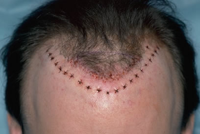 Hair Transplant Repair Techniques Bernstein Medical