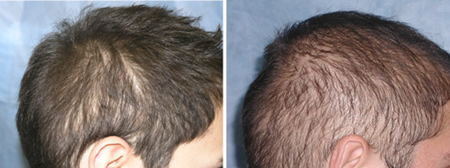 Densitometry and Video-Microscopy in the Hair Transplant Evaluation