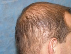 Diffuse Unpatterned Alopecia (DUPA) in a 32 year-old male