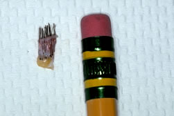 4-mm Punch Graft and Pencil Eraser
