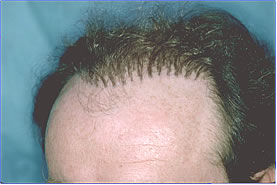 Bad Hair Transplant - Row of Plugs