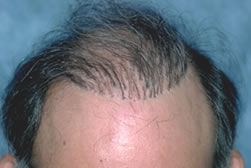 Guide to Hair Restoration - Pluggy look typical of the older hair transplant procedures