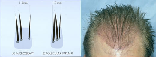 Growing from one multiple follicle hairs Can Multiple