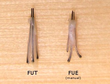Graft Quality of Manual FUE versus FUT