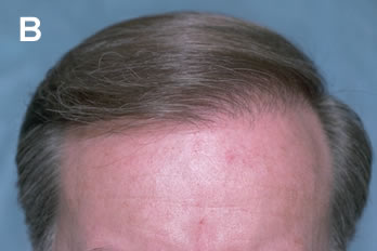 Logic of Follicular Unit Transplantation - 48 year old male with a thinning Norwood Class VA - After hair transplant procedure of 2,803 follicular units