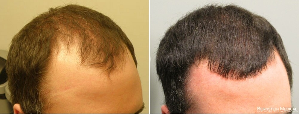 Propecia Rogaine Before After Photos Bernstein Medical