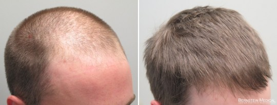 Patient BQC - 28 y/o male before treatment (left); after 3 years and 3 months on Finasteride 1.25mg daily, and Rogaine (minoxidil) 5% PM (right)