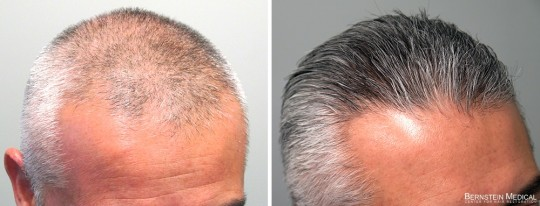 Patient LTF - 47 y/o male before treatment (left); after 1 year on finasteride 1.25mg/day PM (right)