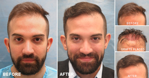 Hair Transplant Surgery: Types, Candidacy, The Procedure
