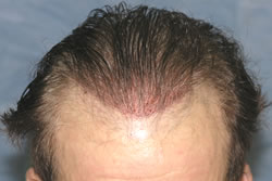 Second Hair Transplant - Recipient Sites