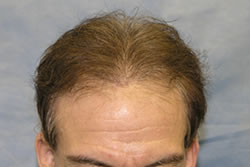 1 Week After 2nd Hair Transplant