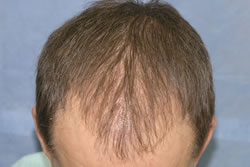 2 Weeks After Hair Restoration Surgery - Top View