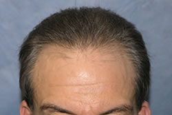 1 Year After Hair Transplantation
