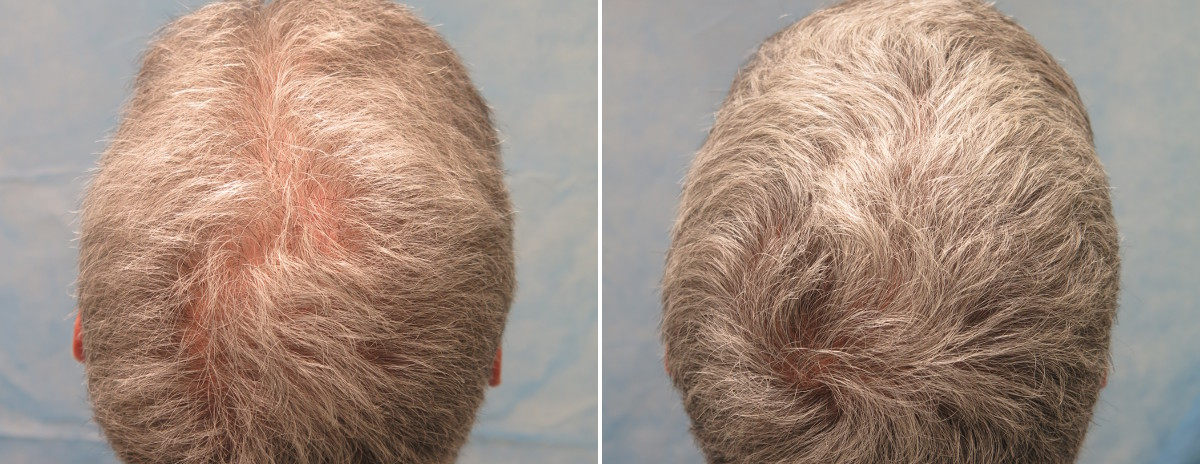PRP for Hair Loss Patient CMR before treatment (left) and 7 weeks after his second PRP session (right)