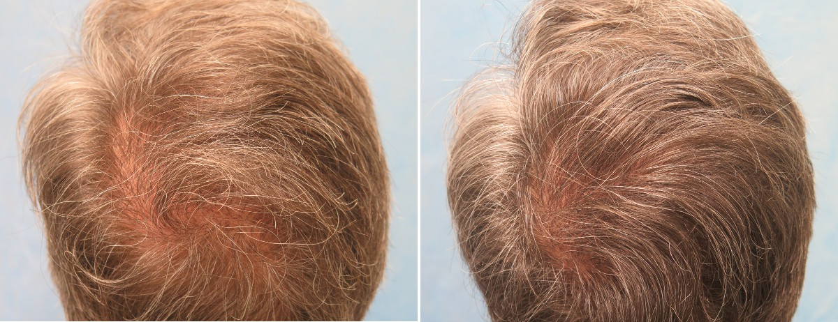 PRP for Hair Loss Patient YCA before treatment (left) and 6 weeks after a second PRP treatment (right)