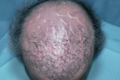 Bad Hair Transplant - Scarring from Artificial Hair Fibers