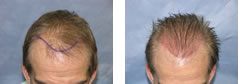 Hair Transplant Photo Journal