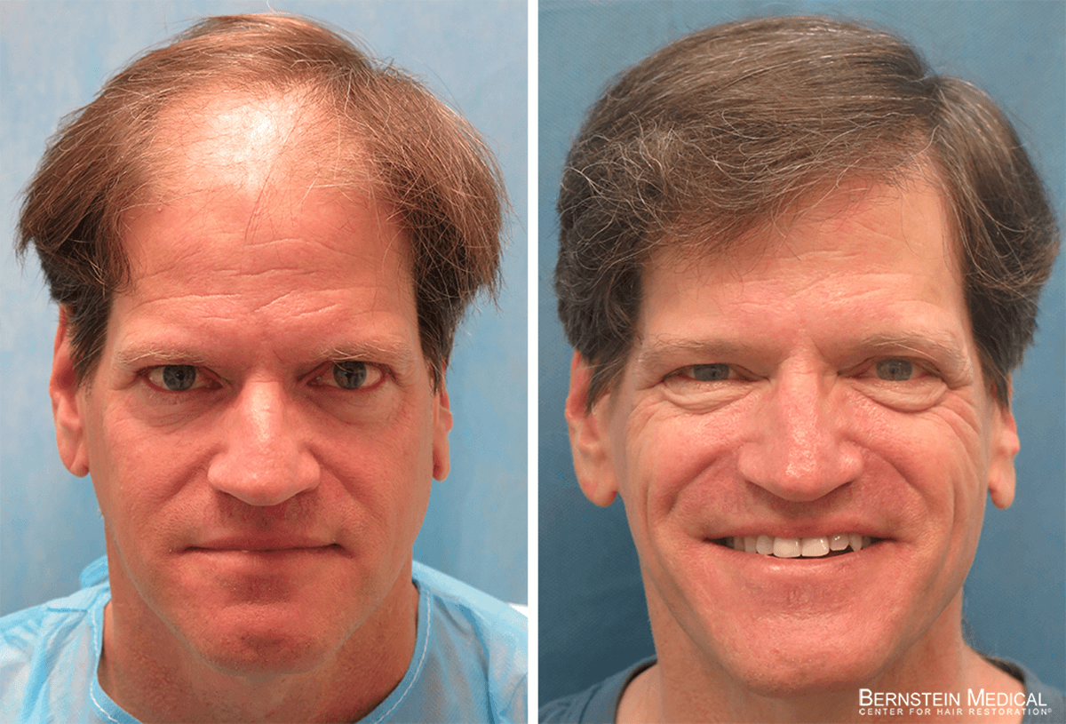 Bernstein Medical - Patient TRT Before and After Hair Transplant Photo