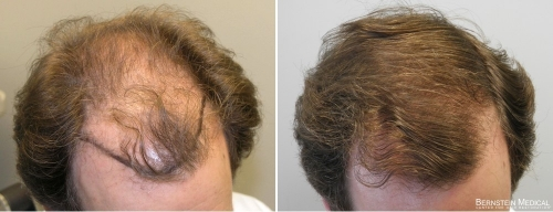 Patient KMJ, a 43 y/o male before treatment (left) and after 14 months on finasteride 1.25mg/day (right)
